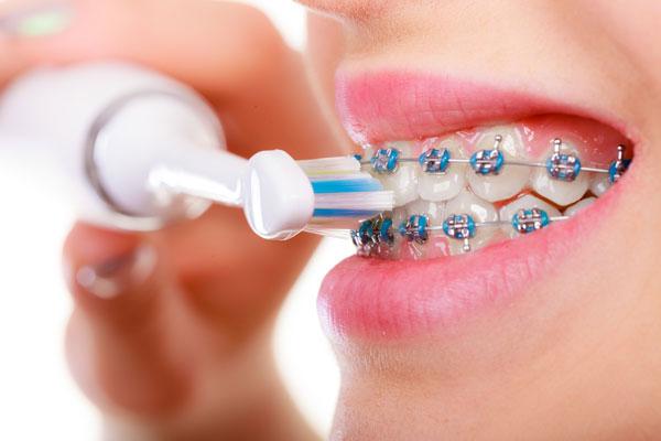 ortodoncia en alcazar de san juan